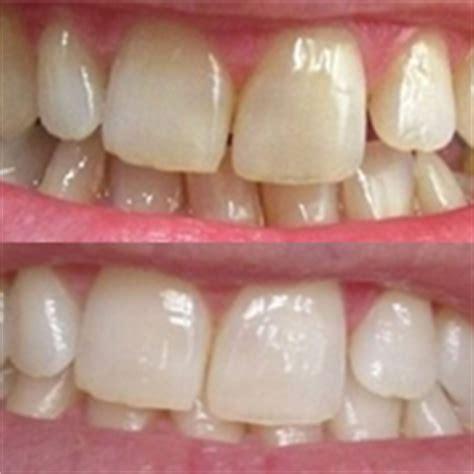 clarksville teeth whitening picture 18
