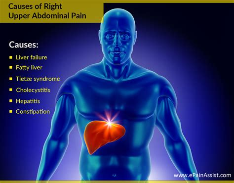 can indigestion radiate to the middle back picture 7