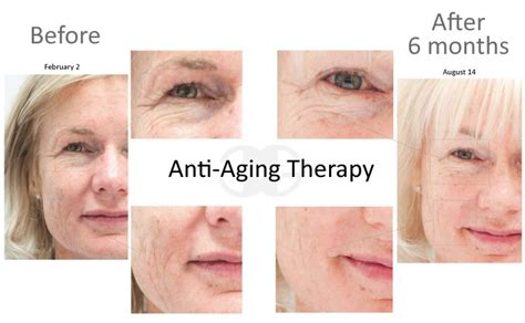 anti aging hormone therapy picture 13