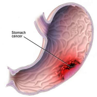el cancer symptoms disorder picture 2