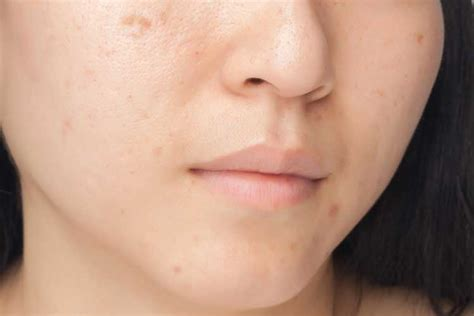 causes of adult acne picture 9