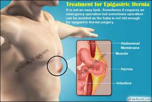 hernia pain relief picture 2