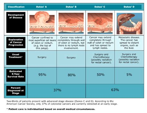 Colon cancer stages picture 2