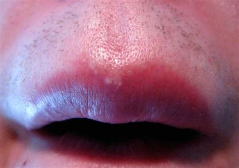 acne caused by shaving picture 10