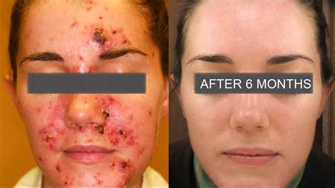 aldactone helping acne picture 1