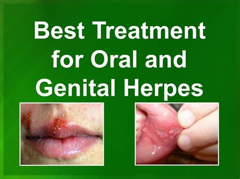 genital herpes cure in japan picture 5