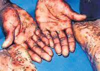 sri lanka gwnital wart treatment picture 3