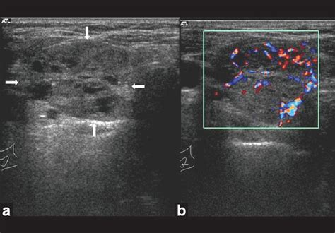 is a lobulated thyroid nodule good or bad,is picture 18