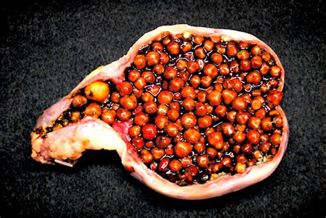gall bladder gall stones picture 5
