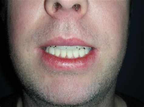 Skin cancer on lips picture 6