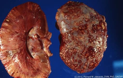 herpes outbreak bad cholesterol picture 14