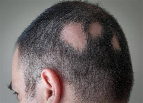 causes of hair loss picture 1