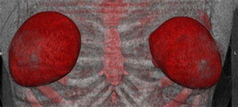 breast augmentation connecticut picture 5