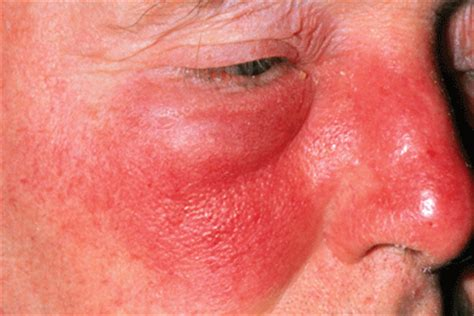 any acute, inflammatory, pus-forming bacterial skin infection, such picture 1
