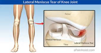 surgery minuscus tear knee joint picture 7