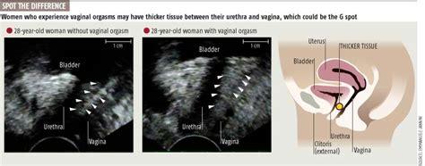 orgasm during testicular ultrasound picture 3