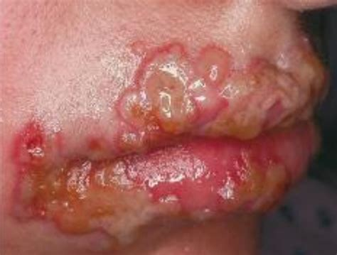 herpes type 2 oral lesion picture 5