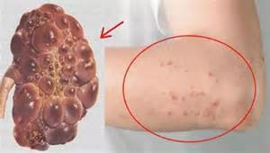 stage 4 liver disease no libido picture 18