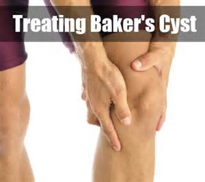 best essential oil for bakers cyst picture 9