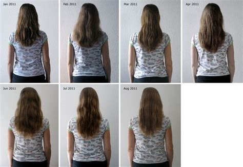 can msm cause hair loss picture 5