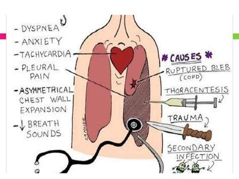 symptoms liver disease picture 11