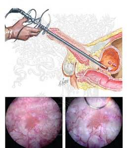 bladder cancer surgical procedures picture 13