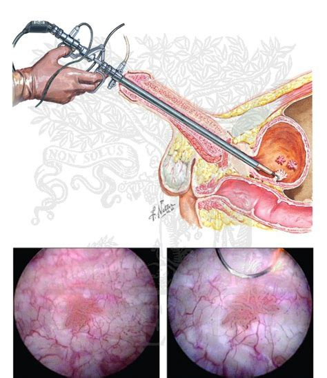 bladder resection picture 3