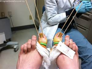 toenail removal surg picture 3
