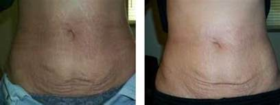 surgical stretch mark removal picture 9