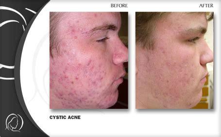 acne laser florida picture 3