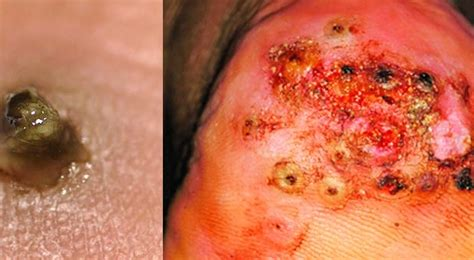 skin dieases picture 5