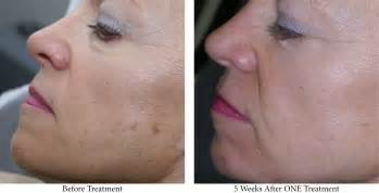 laser hair removal nj picture 13
