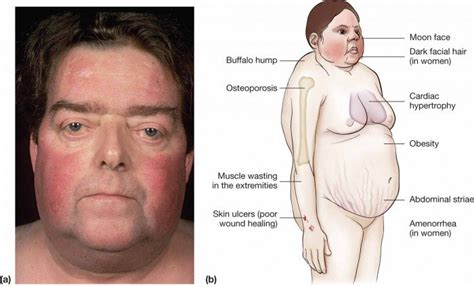 elevated thyroid levels picture 14