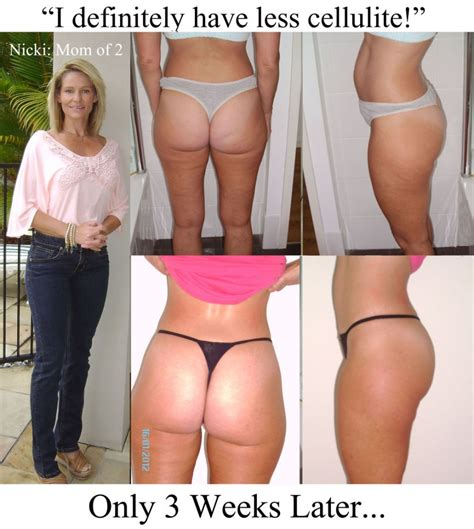 Get rid of dimple and cellulite in picture 2