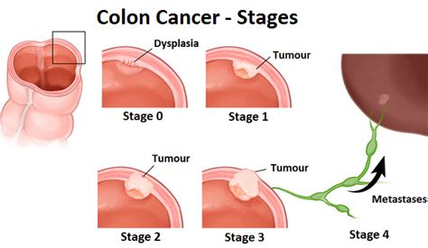 colon cancer and stages picture 6