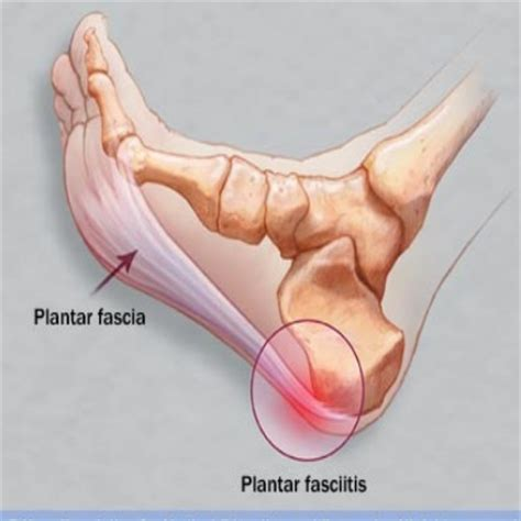 cure for muscle fasciae picture 2