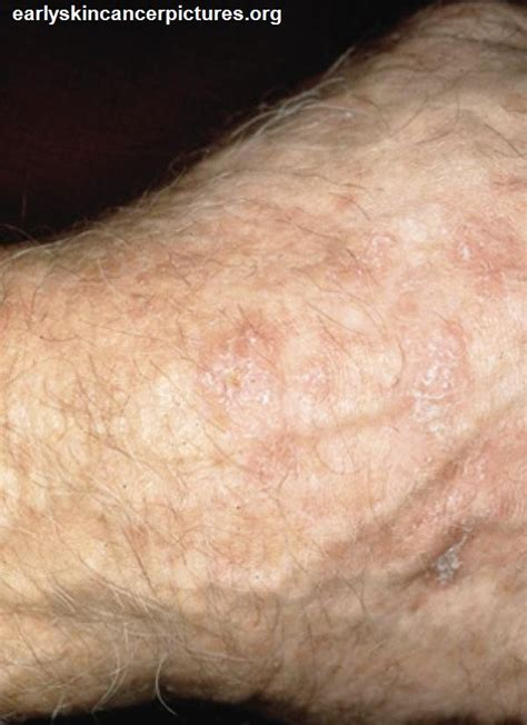 skin cancer photos picture 1