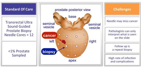 Prostate cancer screening picture 1