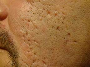 skin picking scarring picture 2