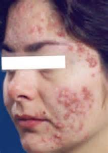 acne outbreaks picture 2