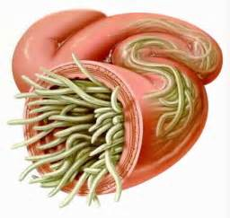 treatment for worms in humans colon cleansing picture 6