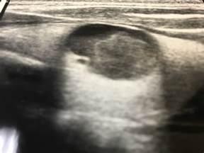 5cm x 8cm thyroid nodule picture 13