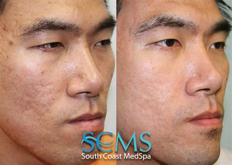 skin needling in los angeles picture 6