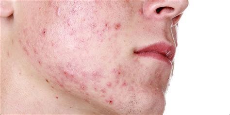 acne from marijuana picture 6