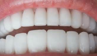 pictures of teeth picture 7