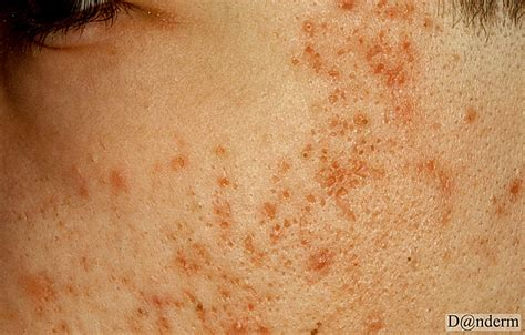 icepick acne scars picture 3