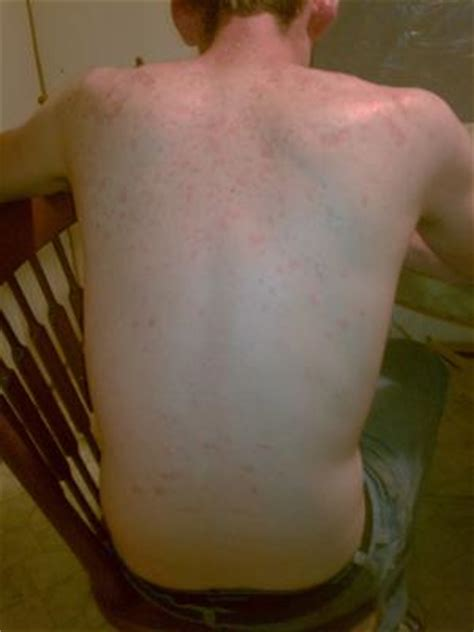 body skin redness and itching home remides picture 8
