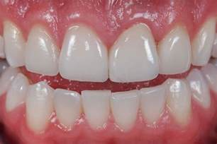 crowns for teeth picture 15