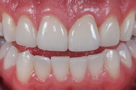 crowns for teeth picture 13