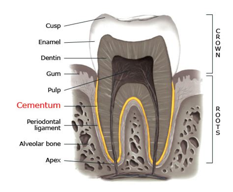 can dental hygients remove cement from teeth with picture 8